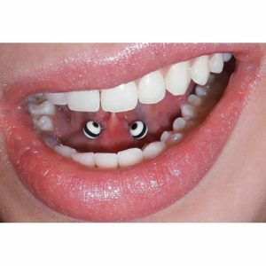 Tongue Web Piercing 47 Ideas Pain Level Healing Time Cost