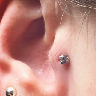 Piercing Infection: 4 Ways to GET RID of FAST
