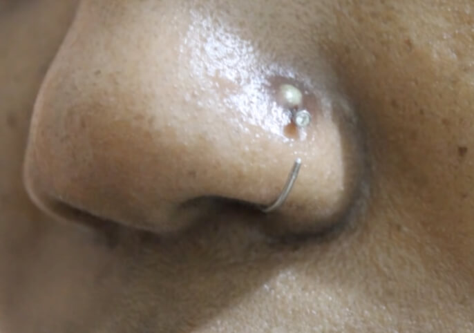 Piercing Infection 4 Ways To Heal Fast Infected Ear Nose Piercing
