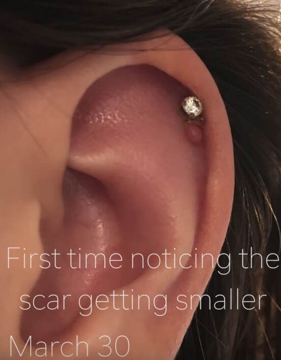 Piercing Bump: 6 Ways to GET RID of Cartilage or Nose Keloid, Infection